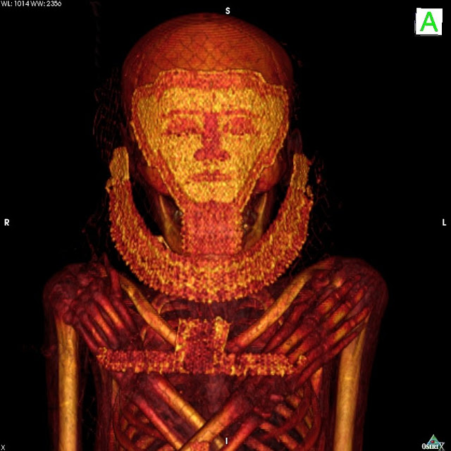 Oldest cases of breast cancer and myeloma revealed in scans of mummies