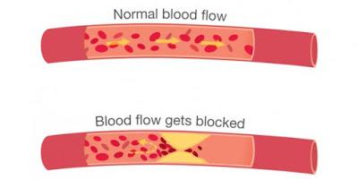 Pembuluh Darah Jantung Bisa Tersumbat Lagi Setelah Pasang Ring?