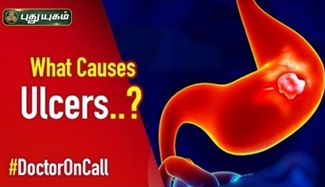 Doctor On Call 29-02-2020 Puthuyugam Tv