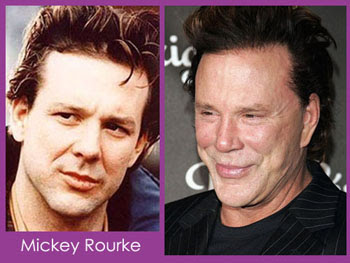 Mickey Rourke Plastic Surgery Before and After Photos ...