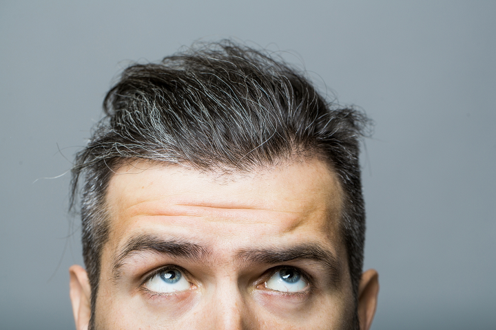 Hair Loss Finasteride Laser Light Or Minoxidil What Will Really