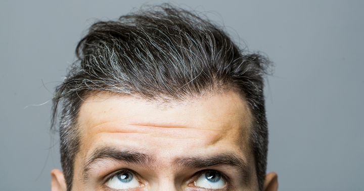 Hair Loss Finasteride Laser Light Or Minoxidil What