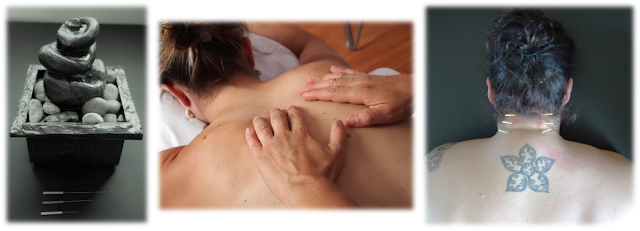 Dry Needling, Manual Therapy, Massage, Trigger Point Release, Physical Therapy