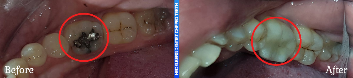 Before & After Smile Gallery For Chipped/Broken & Cracked Teeth