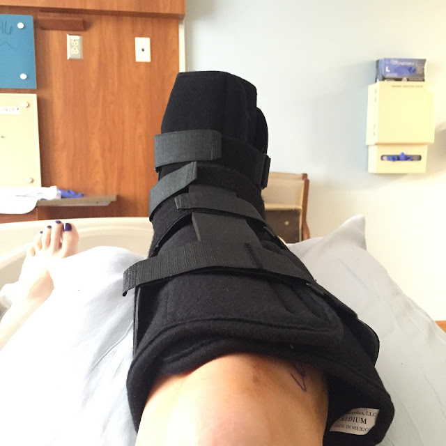 Beautifying the Broken Ankle, my broken ankle journey, breaking your ankle, Pittsburgh, Montefiore Hospital, UPMC, broken ankle boot