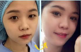Mẹo vặt làm đẹp: Lẫy mỡ ở mắt tại jw Images%2B%25281%2529
