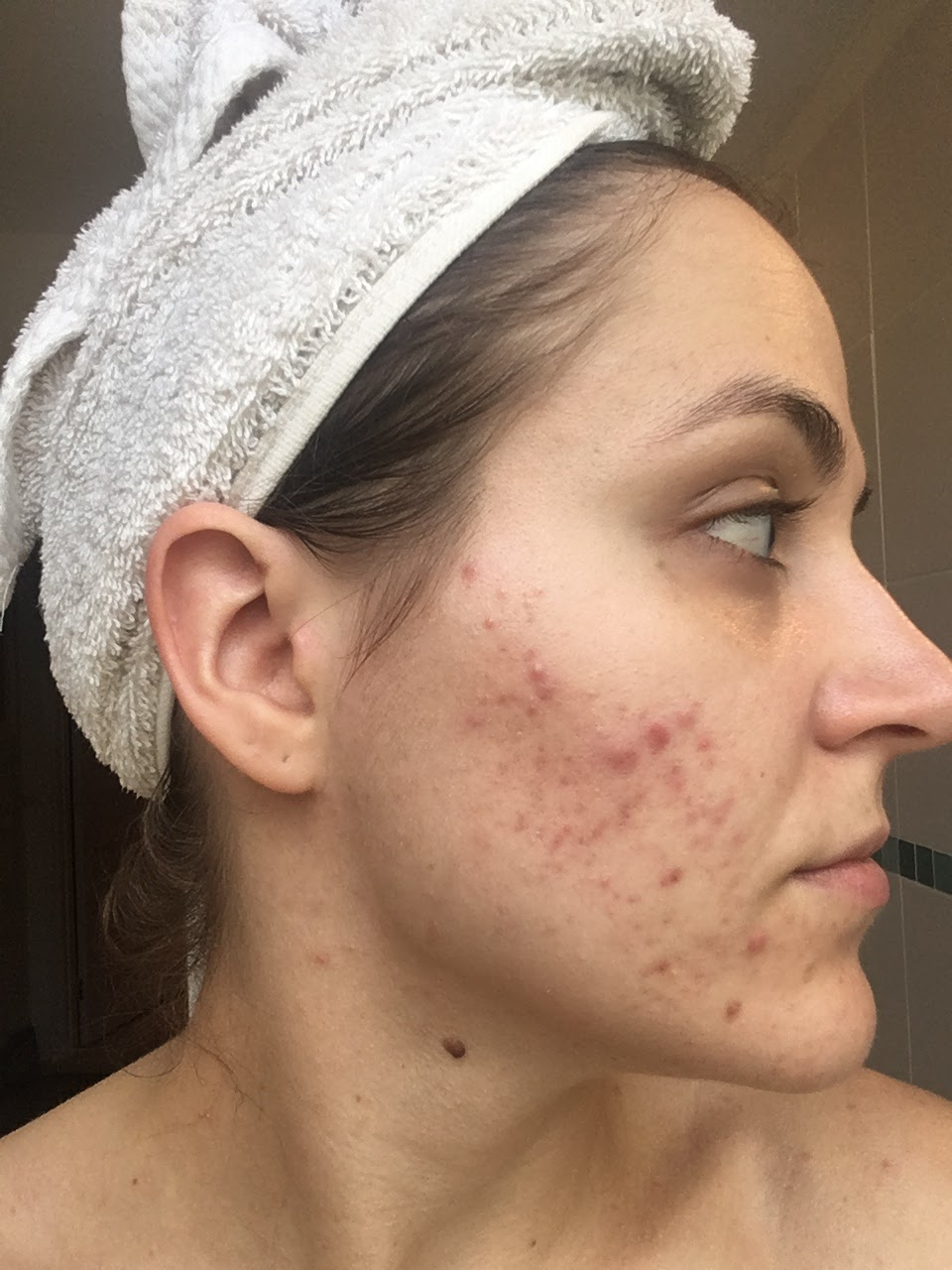My Journey with Severe Acne - Roaccutane. Maggie May