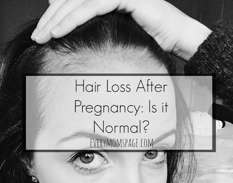 Hair Loss After Pregnancy: Is it Normal?