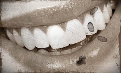 implanturi dentale modenre sub forma de biodinti care cresc in gura