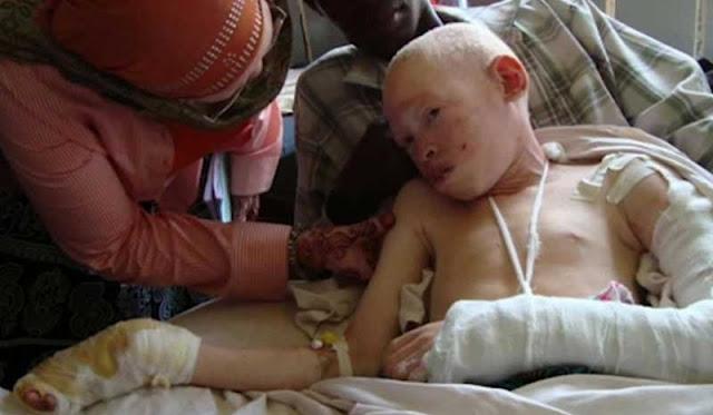 Mira el infierno que viven los albinos en África. Son el platillo más caro del mundo… 7