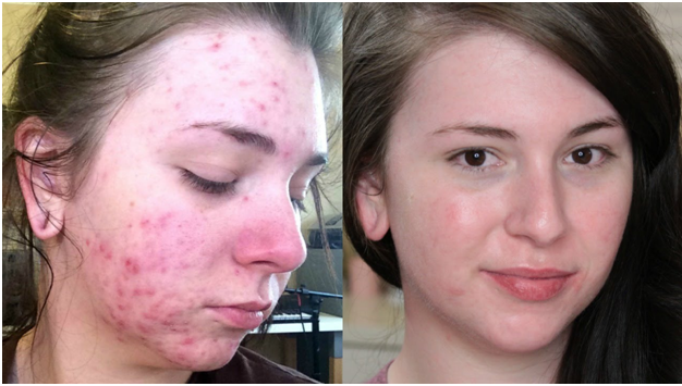 Cystic Acne picture