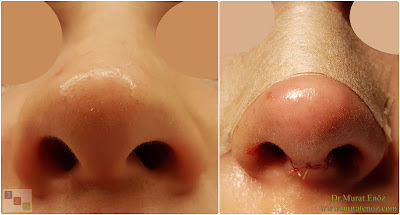 Nose Tip Plasty in Istanbul - Nasal Tip Plasty in İstanbul - Nose Tip Reshaping in İstanbul - Nose Tip Surgery in İstanbul - Nose Tip Lifting in İstanbul - Droopy Nasal Tip Rhinoplasty - Droopy Nasal Tip Correction - Droopy Nasal Tip Surgery - Nasal Tip Ptosis - Droopy Tip Correction - Nose Tip Surgery Turkey
