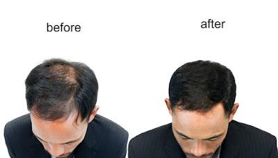 Kaya hair transplant