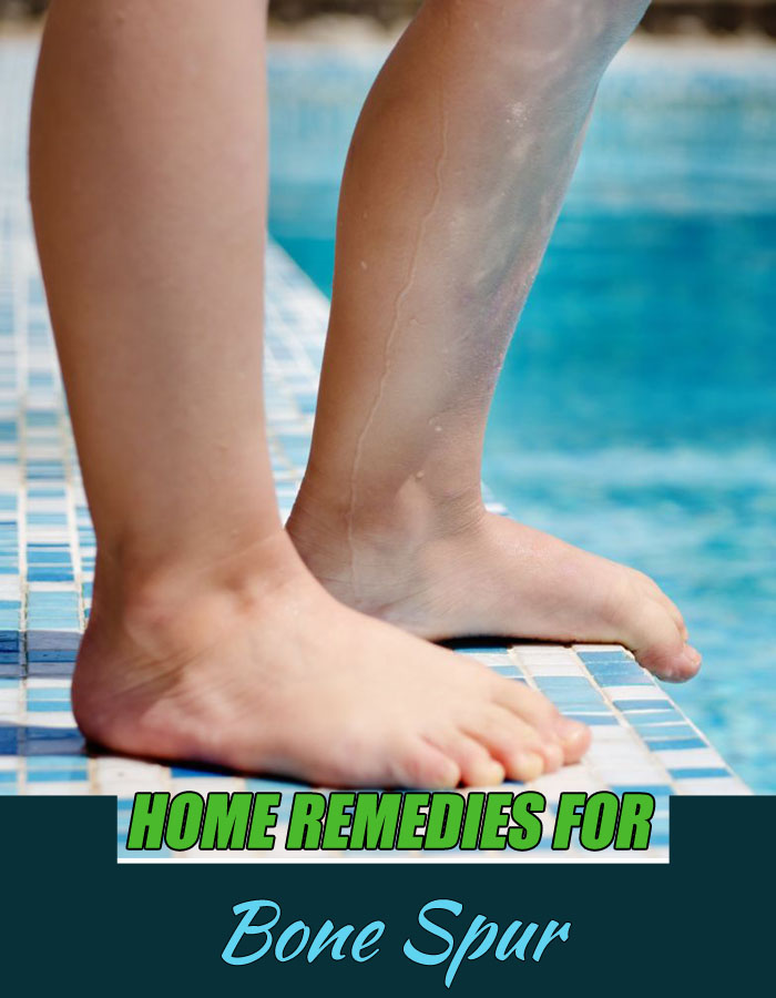 Home Remedies for Bone Spur