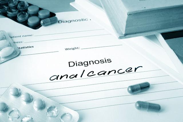 Lebih Mengenal Tentang Kanker Anus