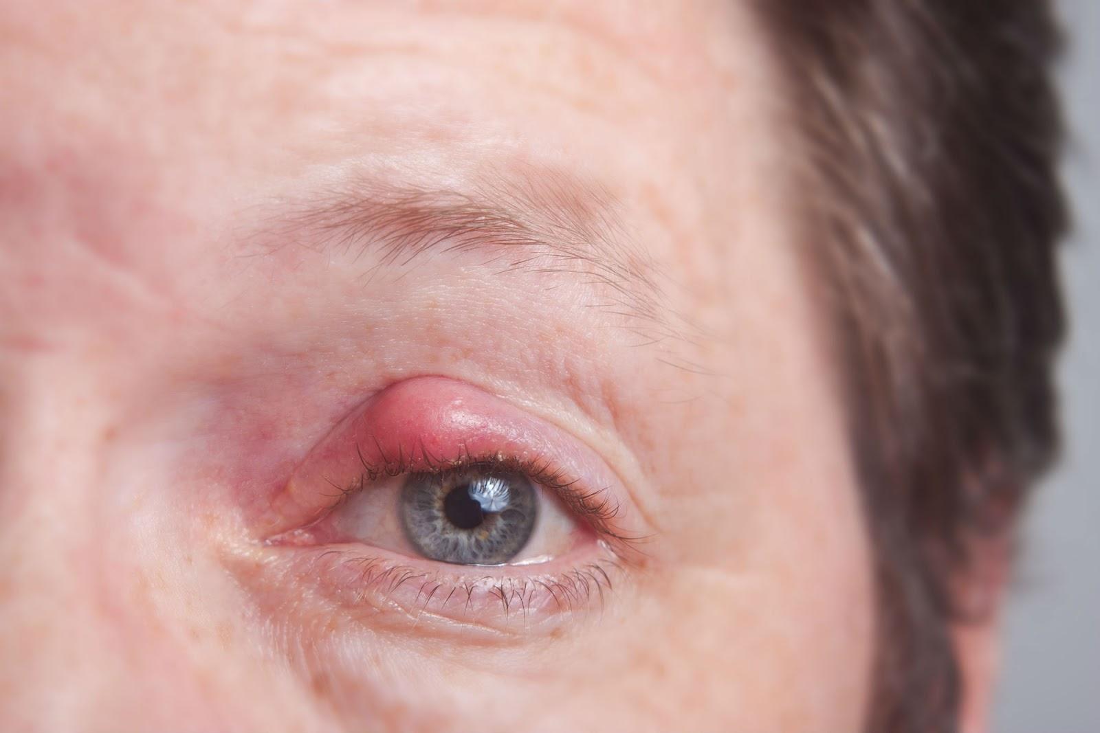 Pengobatan Penyakit Mata Bintitan Tradisional
