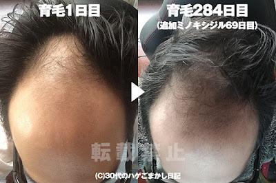2017年3月13日の頭皮