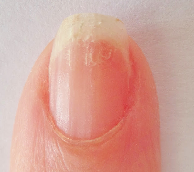 dry brittle nail