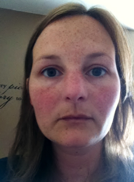 Prednisone hot flushed face - cenjackpocpy46's soup