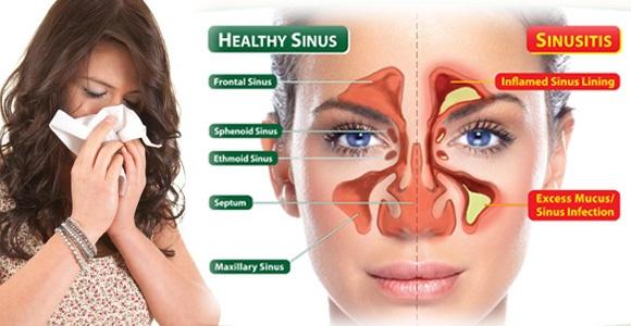 Pengertian Gejala Cara Mengobati Penyakit Sinusitis
