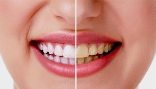 Cara Mudah Memutihkan Gigi Dalam Hitungan Menit