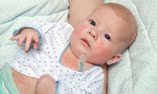 Alergi pada Bayi