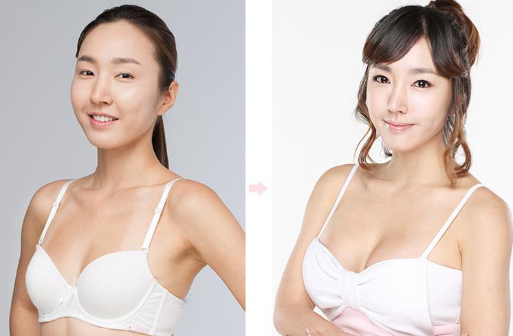 quy trình nâng ngực
