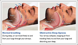 Pareri despre Sindromul de apnee in somn