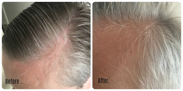 TRX2® food supplement & revitalising lotion Before & After pictures