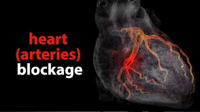 Heart Blockage