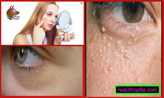 وصفة لتخلص من حبوب البيضاء التي تكون أسفل العيون ويمكن إستعمالها على البشرة كذلك
