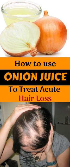 How to use Onion Juice To Treat Acute Hair Loss