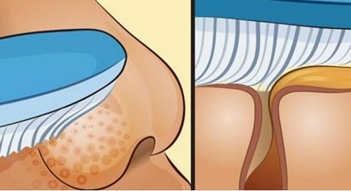 Inilah Cara Mudah Menghilangkan Komedo Menggunakan Bantuan Sikat Gigi. Yang Komedoan Wajib COBA !!