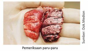 pemeriksaan paru-paru unggas atau ayam