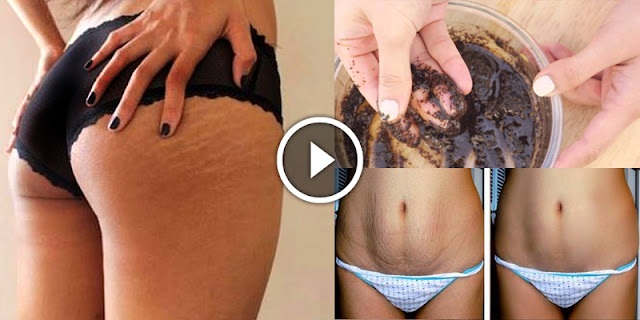 Got Stubborn Stretch Marks - Mix These Two Household Items And Get Rid Of Them Permanently!