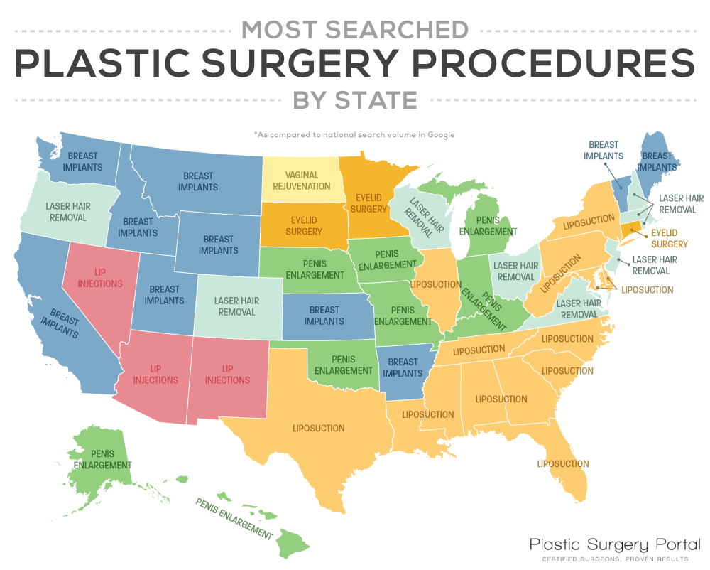 Most searched plastic surgery procedures by state