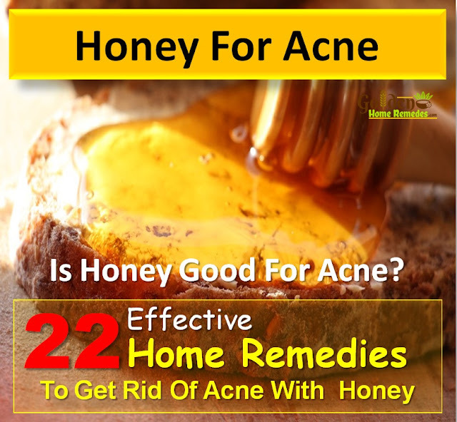 Honey for Acne, Honey Acne, Honey And Acne, How To Use Honey For Acne, Is Honey Good For Acne, How To Get Rid Of Acne With Honey, Acne Treatment With Honey, How To Treat Acne With Honey,