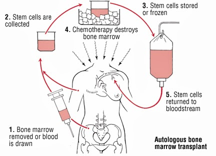 Wheelchair Kamikaze: Stem Cell Treatments for Multiple ...