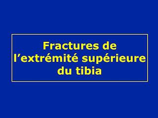 Fractures de l'extrémité supérieure du tibia