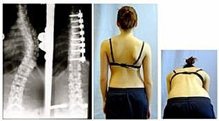 脊椎側彎, 脊椎側彎矯正治療, 脊椎側彎拉直, 脊椎側彎手術, 脊椎側彎開刀, 脊椎側彎 物理治療, 脊椎側彎復健