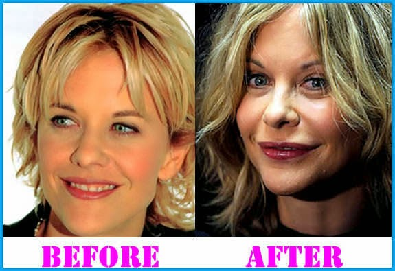 Meg Ryan Plastic Surgery Facelift Before And After Botox