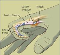 http://www.emutwae.com/2018/01/obat-alami-finger-trigger.html