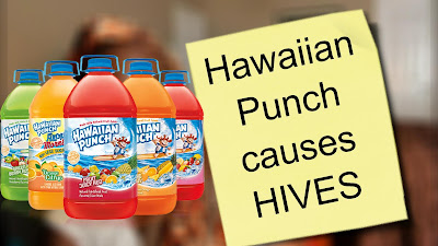 Hawaiian Punch Causes Hives