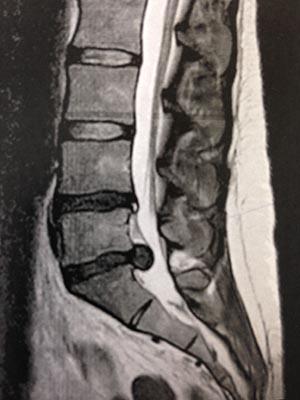 guérir hernie discale