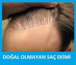 yanlış saç ekimi nası düzeltilir