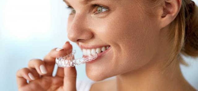 What You Need To Know About Invisalign Austin Procedures