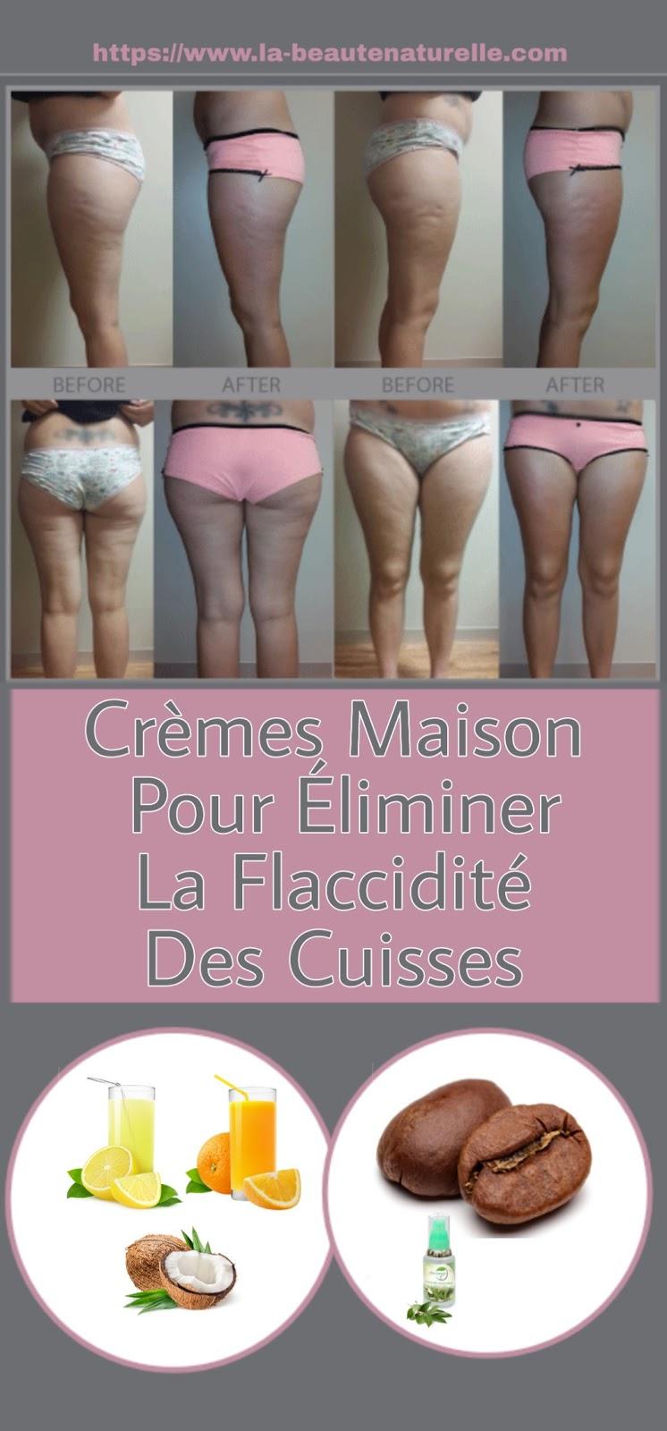 Crèmes Maison Pour Éliminer La Flaccidité Des Cuisses