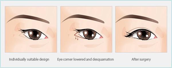 http://jpmaxface.com/inner-eye-corner-surgery/