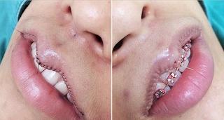 Η νέα απωθητική τάση στην πλαστική χειρουργική! Γιατί όλες οι γυναίκες μικραίνουν τα… χείλη τους;