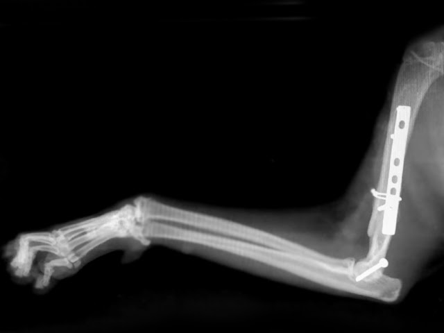 fractura en T codo gato